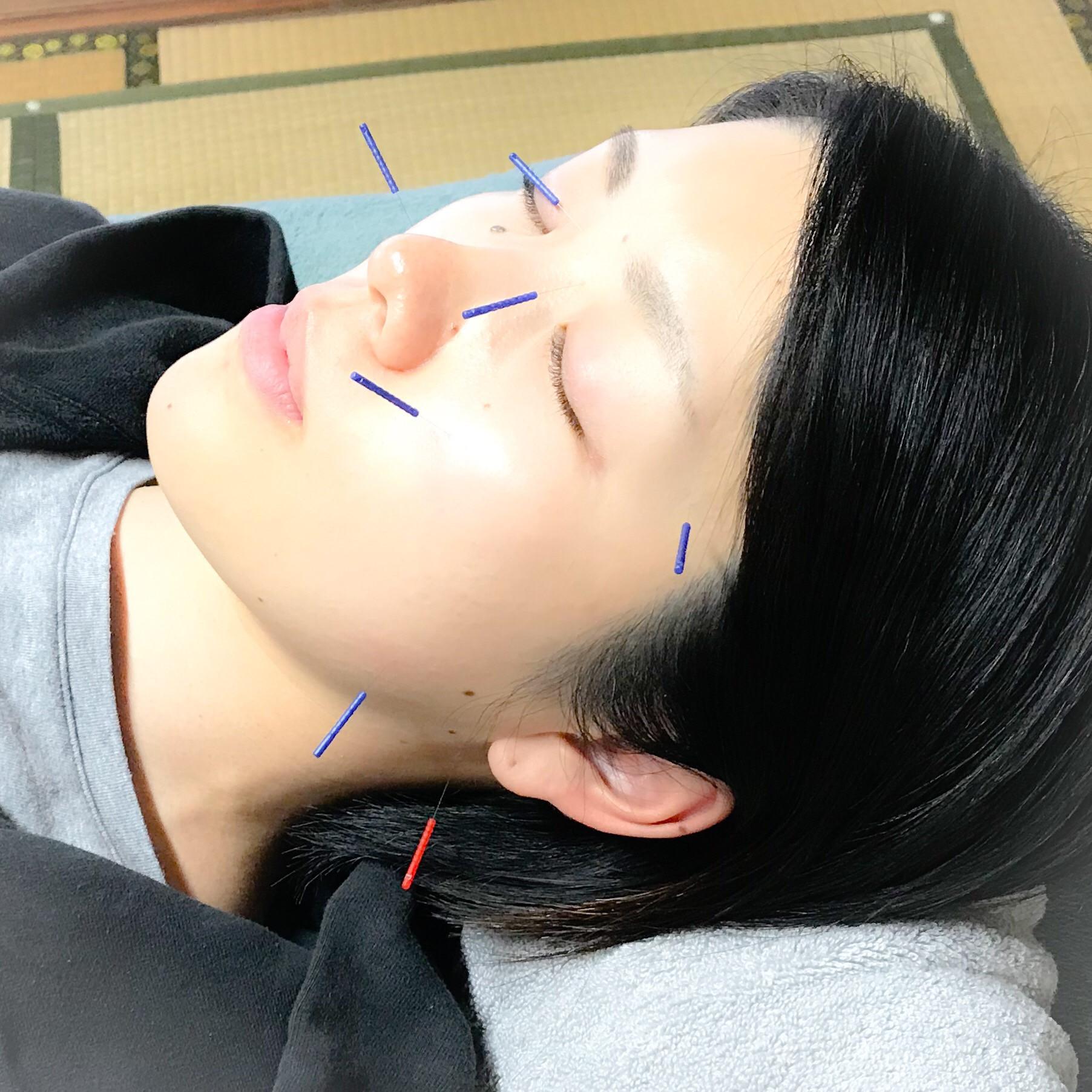 ☆美容鍼☆トライアルコース
