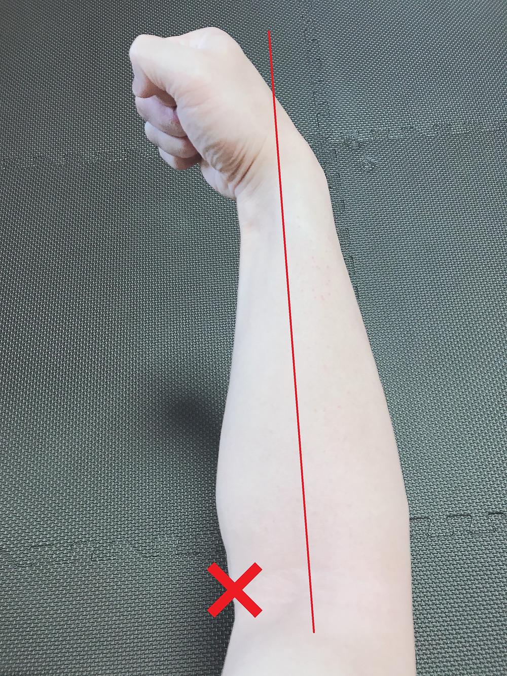 肘 内側の痛み