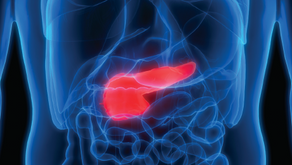 The Puzzle of Pancreatic Cancer