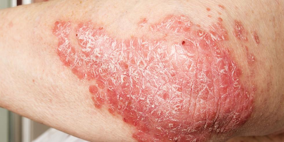 Advanced Medical Dermatology Therapeutics Meeting