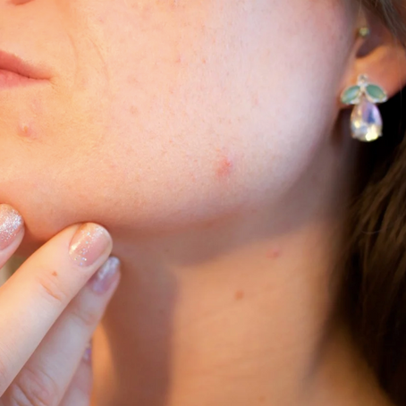 What's Causing Your Acne? The Answers May Surprise You