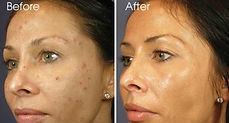 Peel, Acne, Hyperpigmentation, Melasma