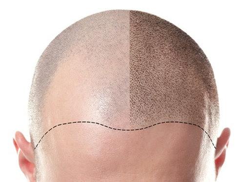 Scalp Micropigmentation Class (3 Day $2,800)