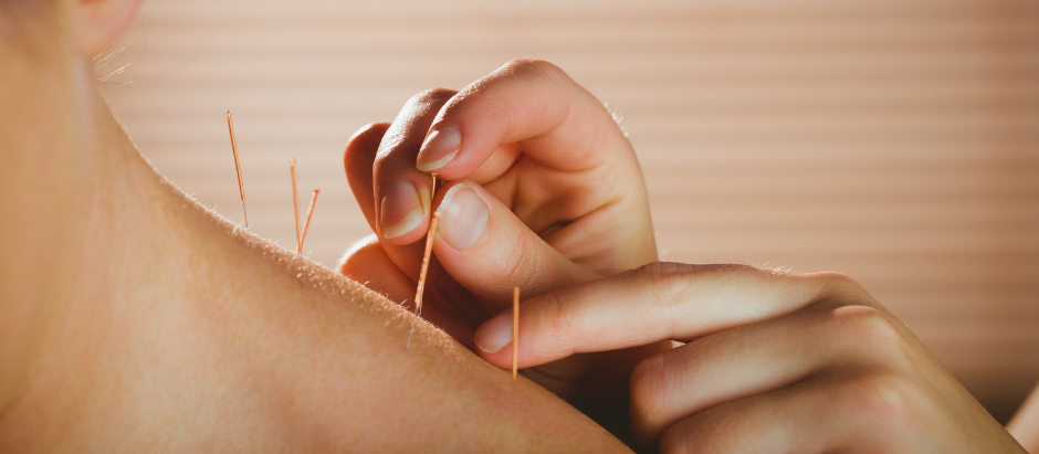 What are the benefits of acupuncture?
