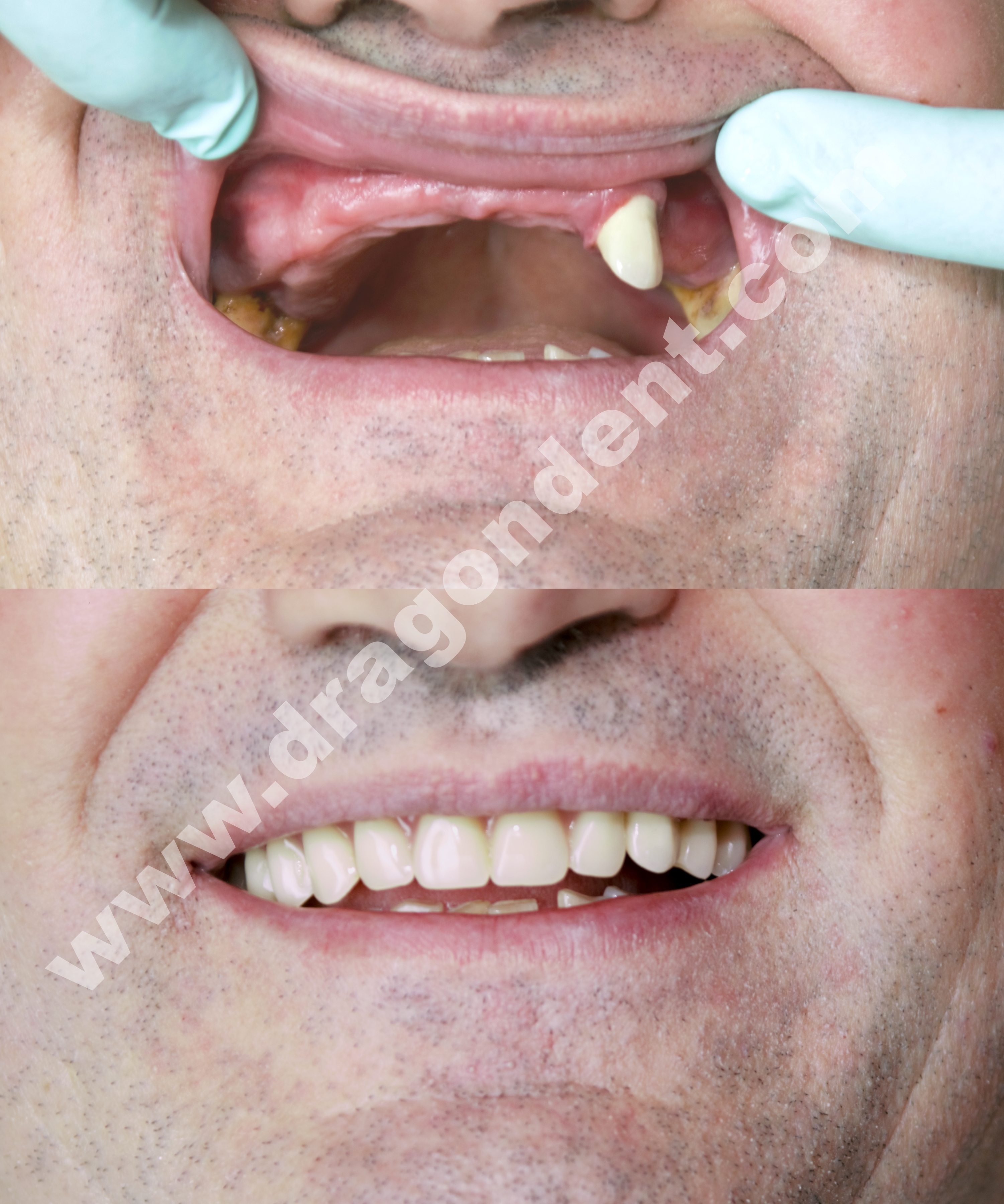 Akrilatna parcijalna proteza Dr Marija Bunijevac.jpg