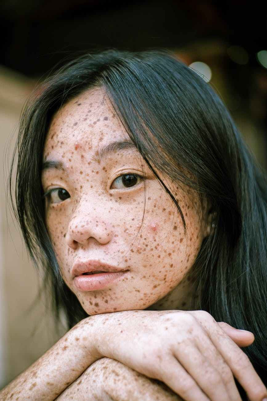 close up photography of woman s face with freckles