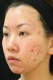 EBPB acne asian