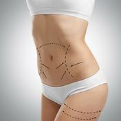 liposuzione-trattamenti-chirurgia-esteti