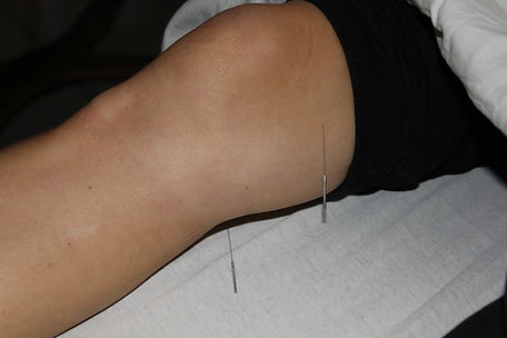agopuntura giapponese