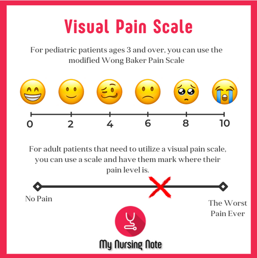 Visual Pain Scale