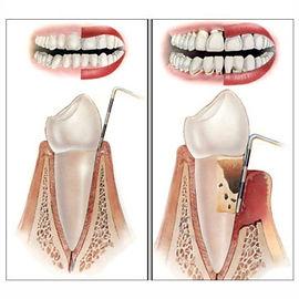 Periodontoloji – Diş Eti Hastalıkları Tedavisi.jpg