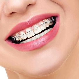 ortodonti tedavisi.jpg