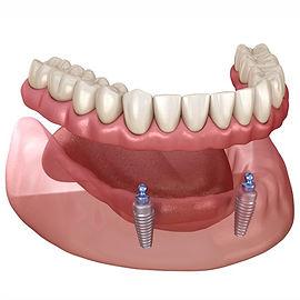 Over Denture (İmplant Üstü Çıtçıtlı Protezler).jpg