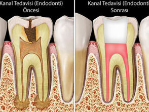 endodonti1.jpg