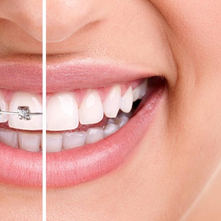 ortodonti-disteli-1920x1080.jpg