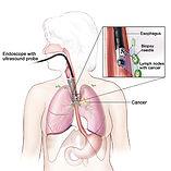 EUS, endosonografia, cancer de pancreas