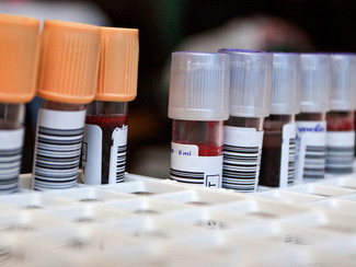 Common Blood Tests Can Help Predict Chronic Disease Risk
