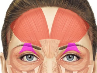 DOCTOR; THE BOTOX MADE MY EYELIDS DROOP!