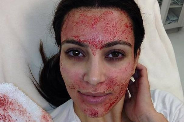 Vampire Facial - Kim Kardashian, Live Young Cosmetics