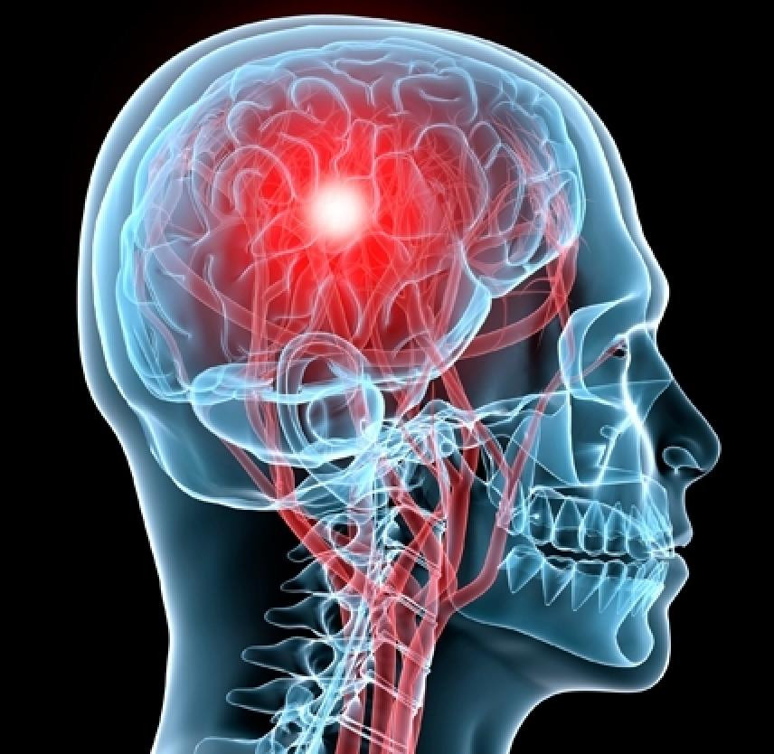 concussion management at Waterloo Sports Medicine Centre
