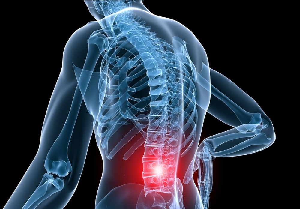 Low back pain can be debilitating but conventional treatment such as physiotherapy and massage therapy can help