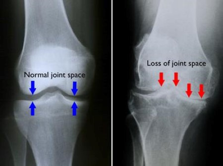 Knee OA...Can you walk 5 minutes per day? Brisk walking can delay knee replacement surgery.