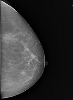 mamograf%C3%ADa_edited.jpg