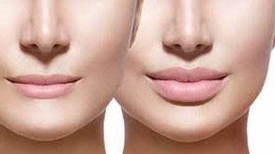 Derma Filler Course(Foundation)