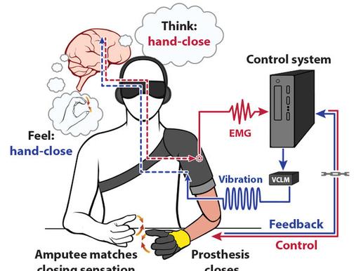 Prótesis que permiten sentir el movimiento