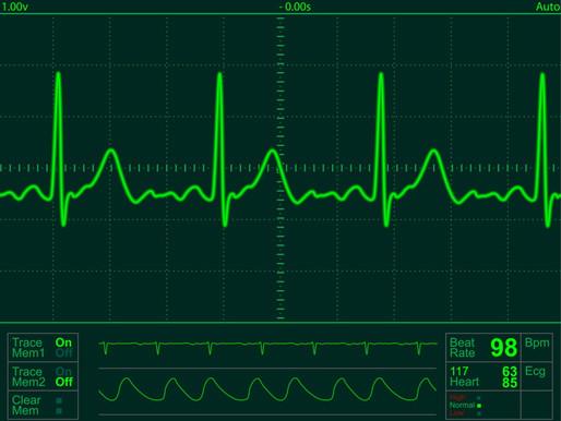 Científicos del MIT consiguen medir el ritmo cardiaco como un router Wi-Fi