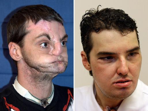 Trasplantes de cara: una revisión de los primeros nueve años