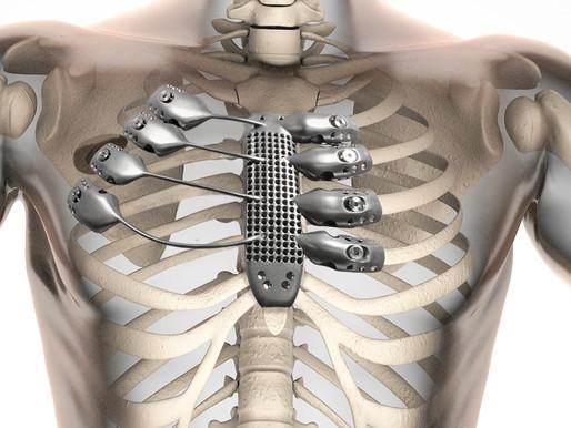 Paciente español recibe el implante del primer esternón de titanio construido con impresión 3D
