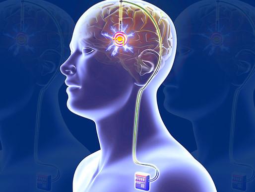 La estimulación cerebral profunda funciona (casi siempre) para tratar la depresión