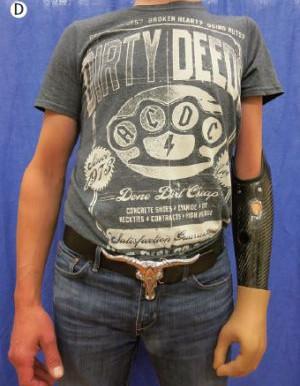 Tres pacientes acceden a que se les ampute un brazo dañado para sustituirlo por uno biónico