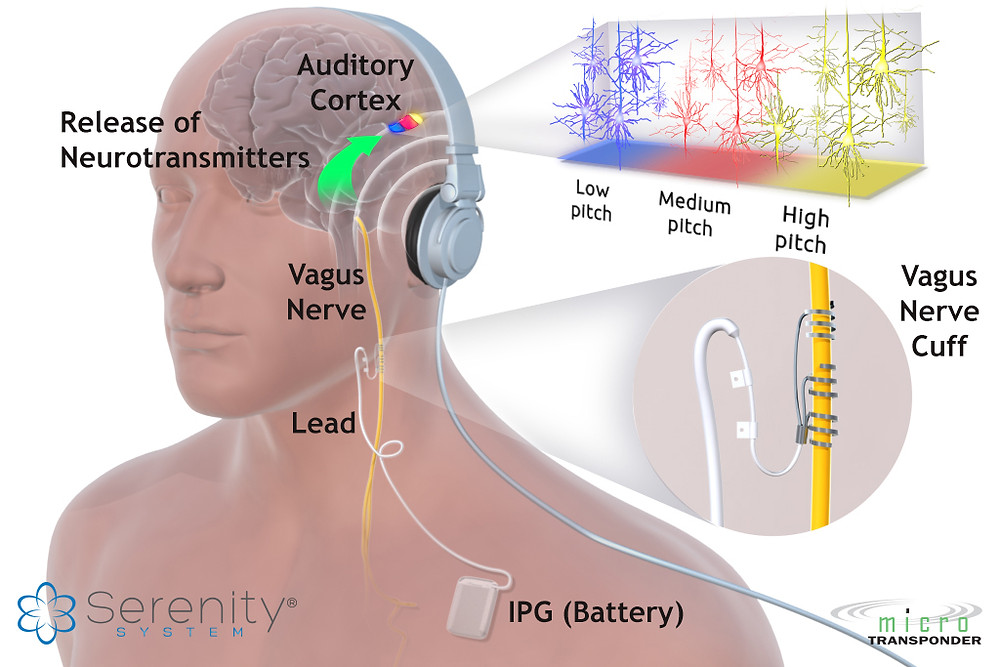 Serenity-Tinnitus-Therapy-Diagram.jpg