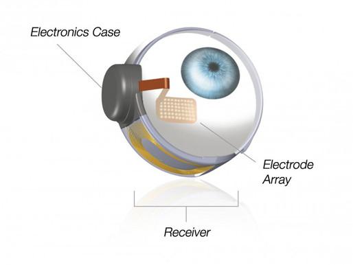 Un hombre vuelve a ver con un ojo biónico después de 33 años en la oscuridad