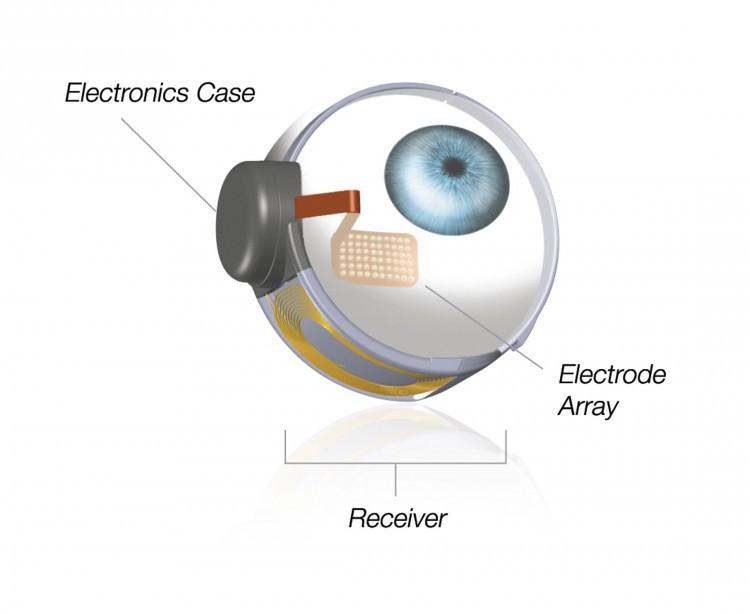 Bionic-eye-750x614.jpg