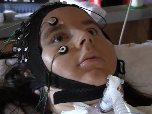 Una interfaz cerebro computador permite comunicarse a personas con síndrome de enclaustramiento comp