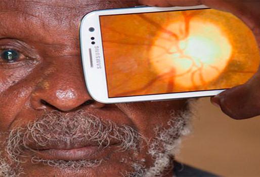 Peek: la app para apoyar a los oculistas en los países del tercer mundo