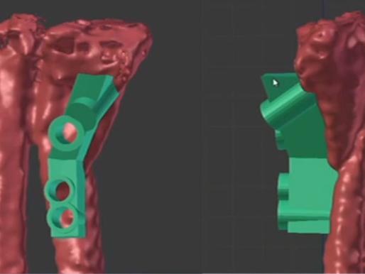 Usando software de modelado 3D e impresión 3D en cirugía ortopédica