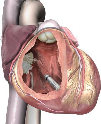 micra-in-heart.jpg
