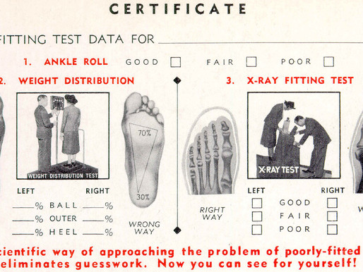 Cuando se usaban rayos X en las zapaterías: interesante nota histórica