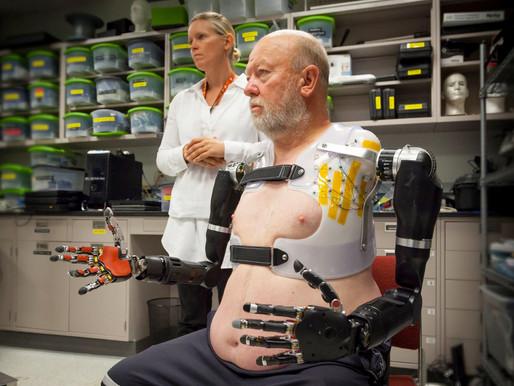 Johns Hopkins University prueba el prototipo de prótesis de doble brazo completo más sofisticado has