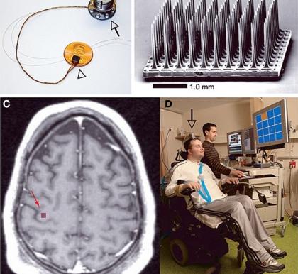 Nuevo récord de velocidad de escritura con una interfaz cerebro-computador