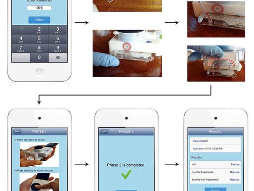 Dispositivo para diagnosticar SIDA y sífilis con un teléfono móvil