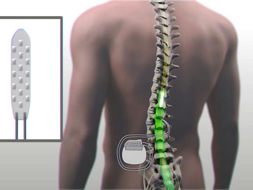 Consiguen que un paralítico vuelva a andar gracias a un electroestimulador