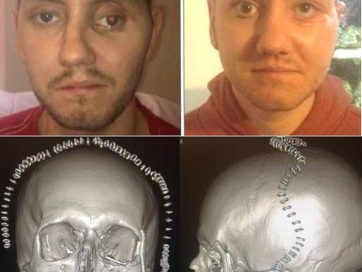 Impresora 3D de titanio permite reconstruir la cara a un paciente