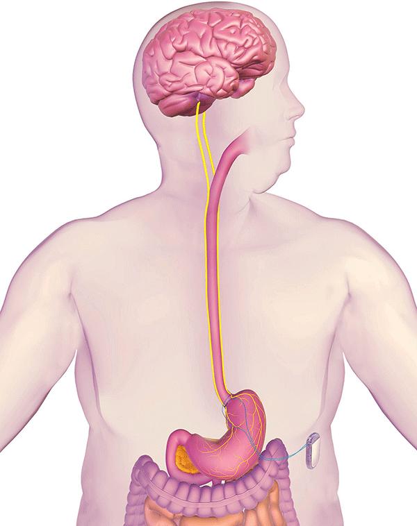 enteromedics-vbloc-system.png