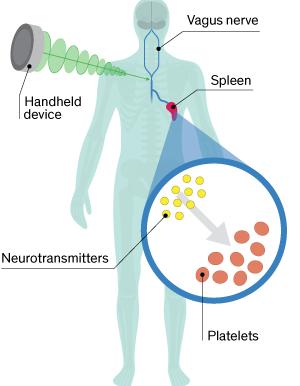 Primeros tests clínicos de un dispositivo electroestimulador nervioso para detener hemorragias