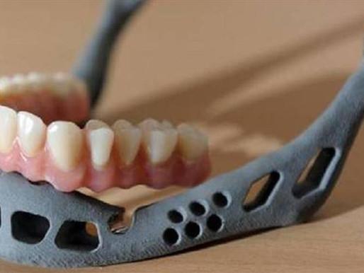 Implantada a un niño una mandíbula de titanio creada con una impresión 3D